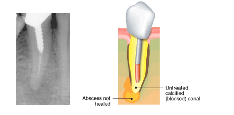 Root Canal Procedures | Dr HughMaguire